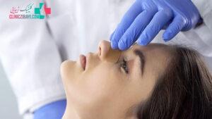 لیفت بینی در شیراز + 10 بهترین دکتر لیفت بینی بدون جراحی شیراز