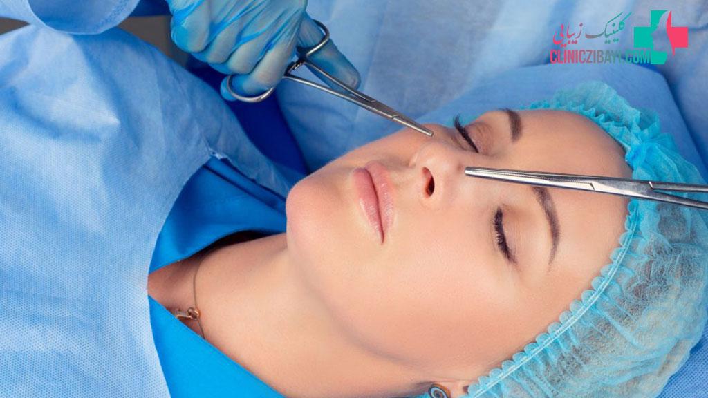 اقدامات قبل از جراحی ترمیمی بینی