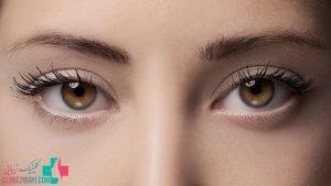 کانتوپلاستی یا جراحی چشم گربه ای چیست ؟