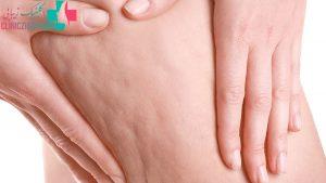 سلولیت چیست و بهترین راه درمان این بیماری کدام است ؟