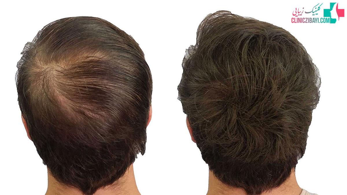 هزینه کاشت مو طبیعی
