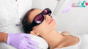 هزینه لیزر موهای زائد نواحی مختلف بدن چقدر است ؟