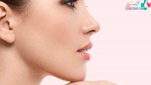 ژینوپلاستی یا جراحی زیبایی چانه چیست و چه کاربردی دارد ؟