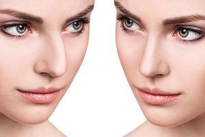 جراحی بینی (راینوپلاستی)