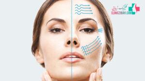 اولتراپی چیست و چه تاثیری بر جوانسازی پوست دارد؟
